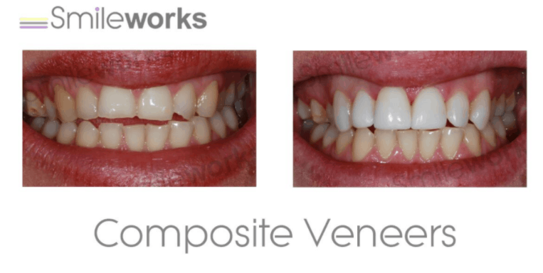 Composite bonding best case