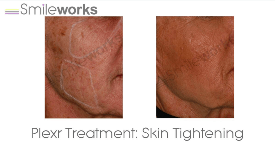 Skin tightening with Plexr