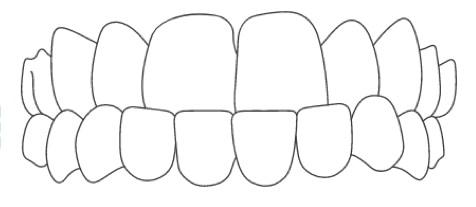 underbite clear braces