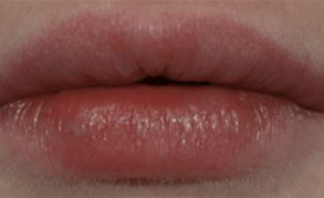 lip plumping injections after