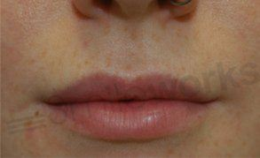 lip shaping before