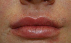 lip shaping after