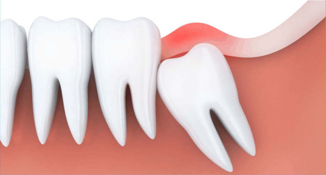Wisdom Tooth Pain Advice From Dentists Amp Whether You Need