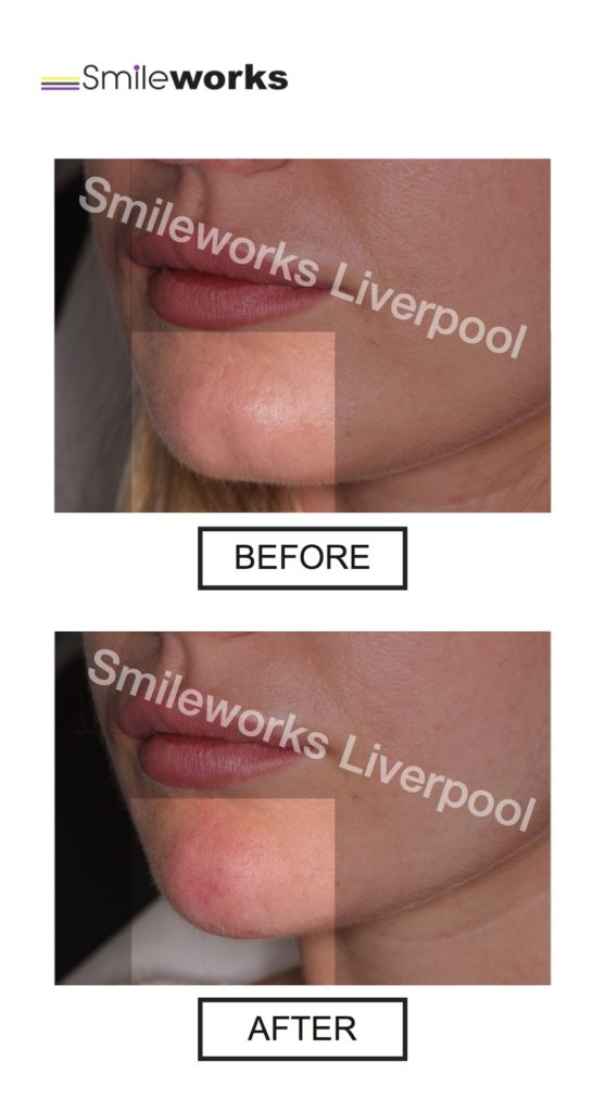Chin Fillers Liverpool