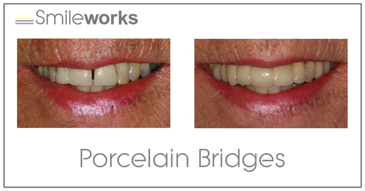 Porcelain Bridge Before and after
