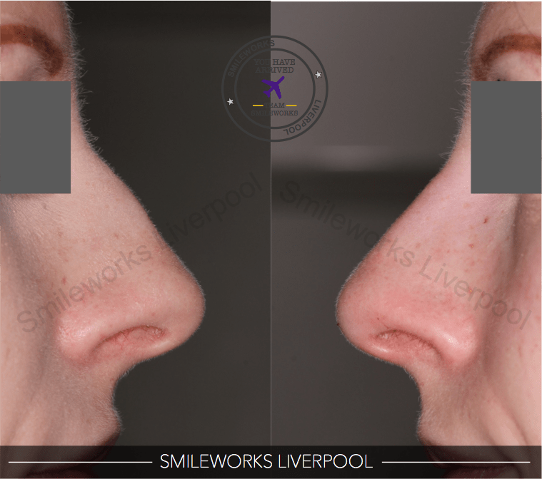 nose filler gallery before and after