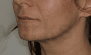 Filler injections after 5