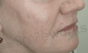 Non surgical face lift before