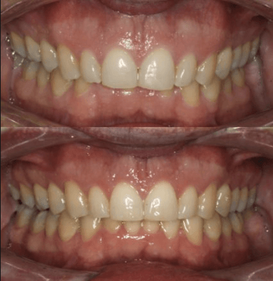 Overbite before and after