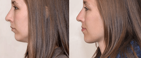 overbite treatment Liverpool