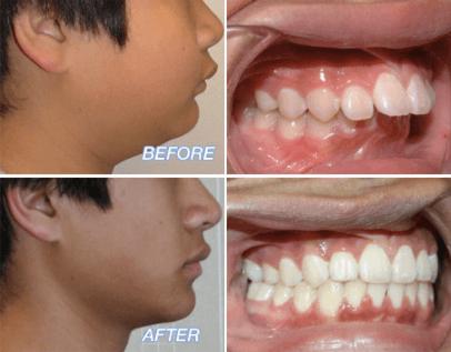 overjet teeth