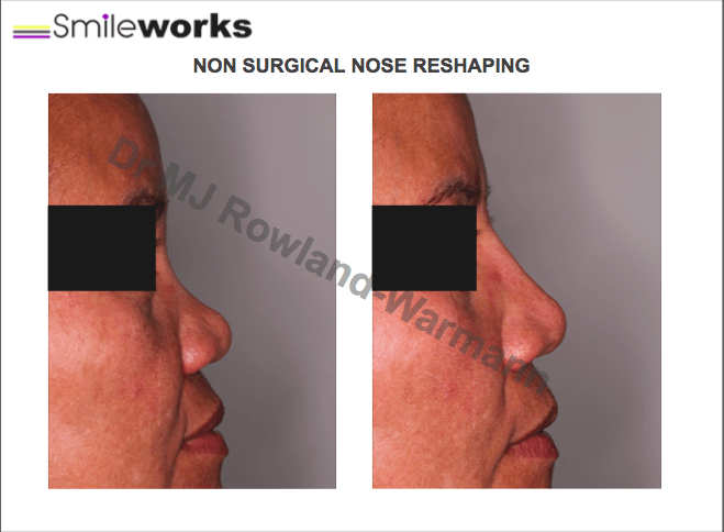 Asian non surgical nose reshaping