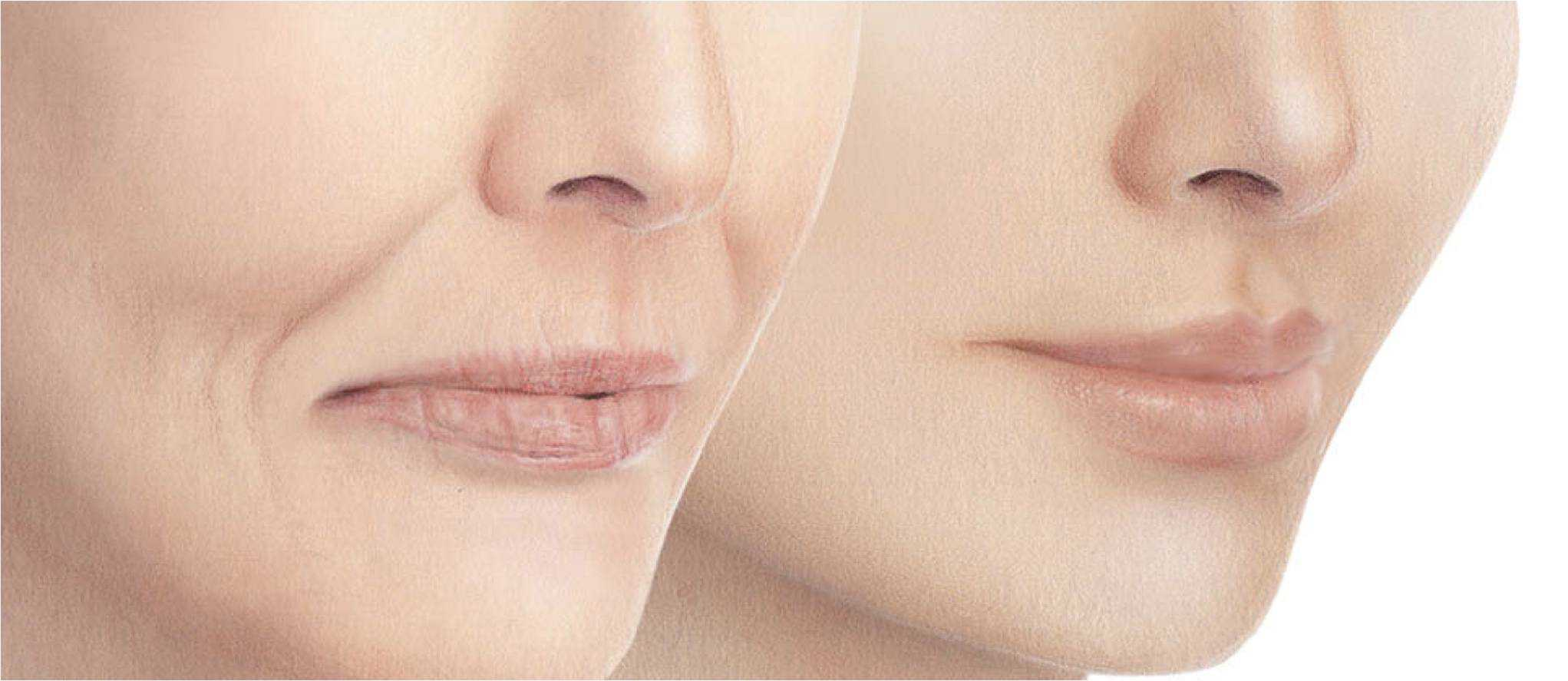 dermal fillers liverpool