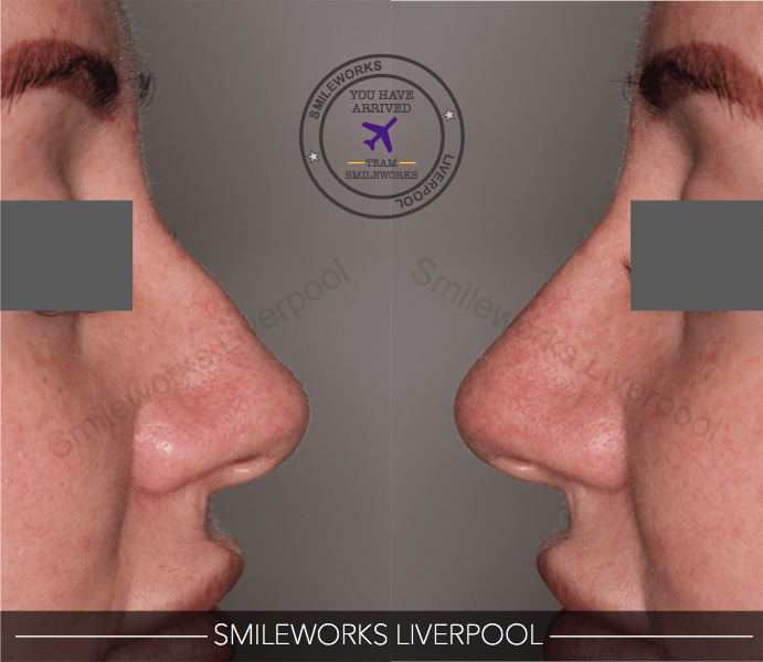 Nose reshaping 2 before and after shot
