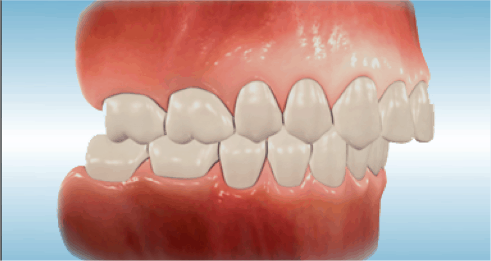 Overjet Amp Overbite In Adult Teeth Causes Amp Orthodontic