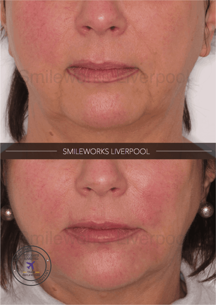 Lower facial volume with Voluma