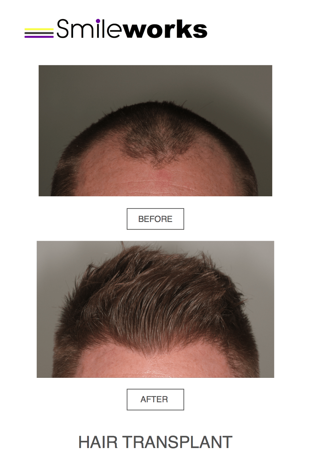 Hair transplant male norwood scale 3 before and after