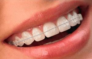 ceramic clear braces
