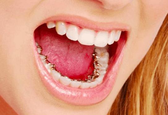Incognito braces cost