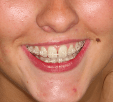 Six Month Smile braces