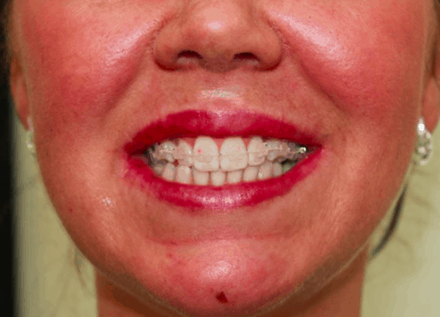 6 Month Smile brackets