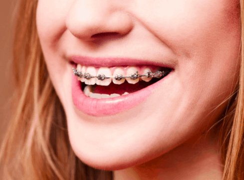 6 month smiles liverpool unbiased reviews price comparison traditional metal braces solutioingenieria Choice Image