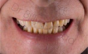 partial denture after