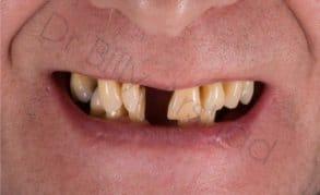 Partial denture before