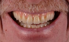 Dentures liverpool natural looking affordable from 94pm false teeth after solutioingenieria Image collections