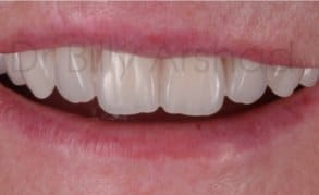 Dentures liverpool natural looking affordable from 94pm denture full set after solutioingenieria Image collections
