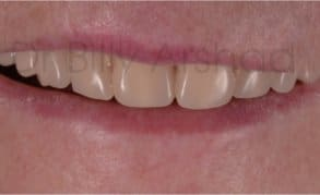 Dentures liverpool natural looking affordable from 94pm dentures full set before solutioingenieria Choice Image
