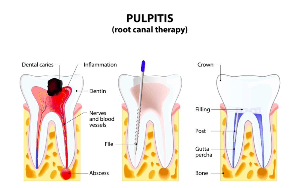 Pulpitis and root canal therapy