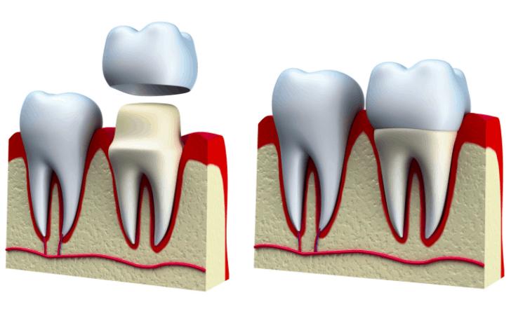 Dental Crown Liverpool