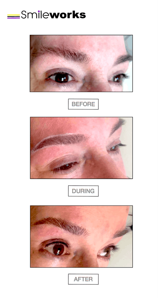 Before, during and after eyes tattoo treatment