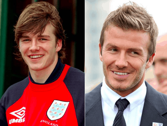 David Beckham before and after