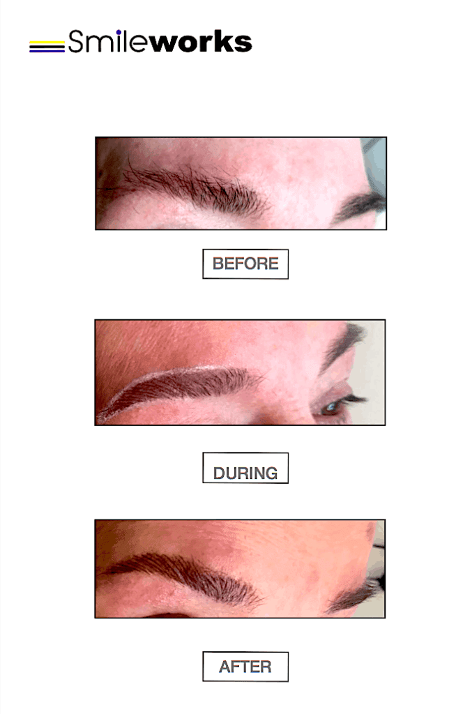 Micropigmentation eyebrows before during and after image