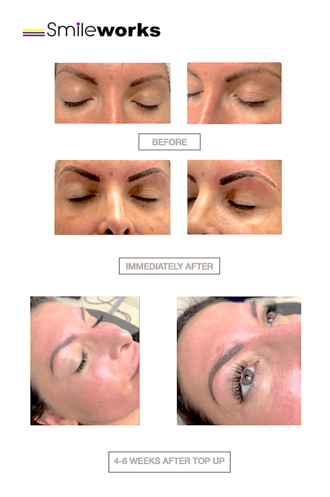 Eyebrows tattoo and obagi before and after
