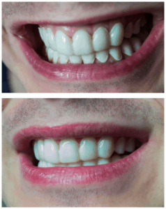 clip on veneers liverpool