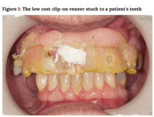Clip on veneers damaged teeth