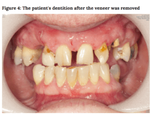 the state of the patient's dentition
