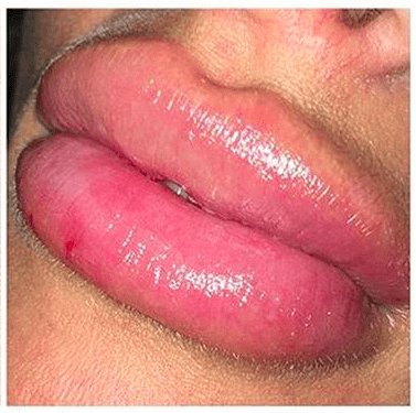 Fillers gone wrong? Dissolve fillers with Hyaluronidase