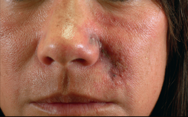 vascular complication of nasolabial folds causing necrosis