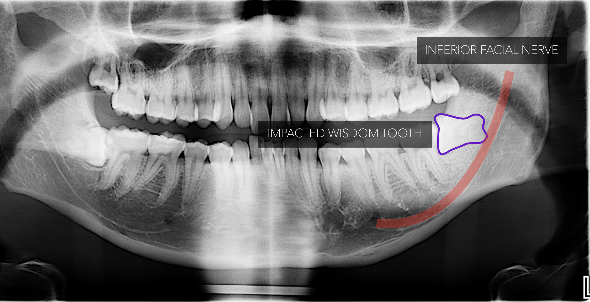 Impacted Tooth In Clost Proximity to Inferior dental nerve