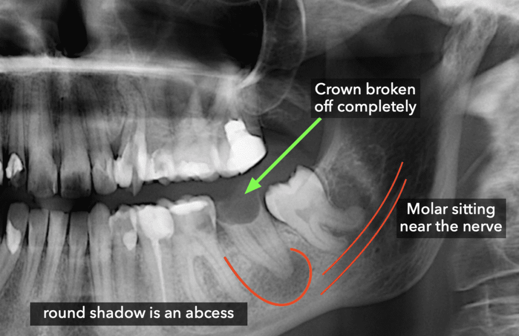 Broken crown with abcess
