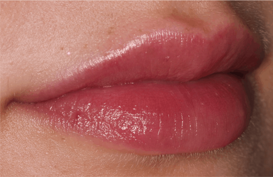 Lip Fillers Liverpool | Full, Plump and Natural Lips from