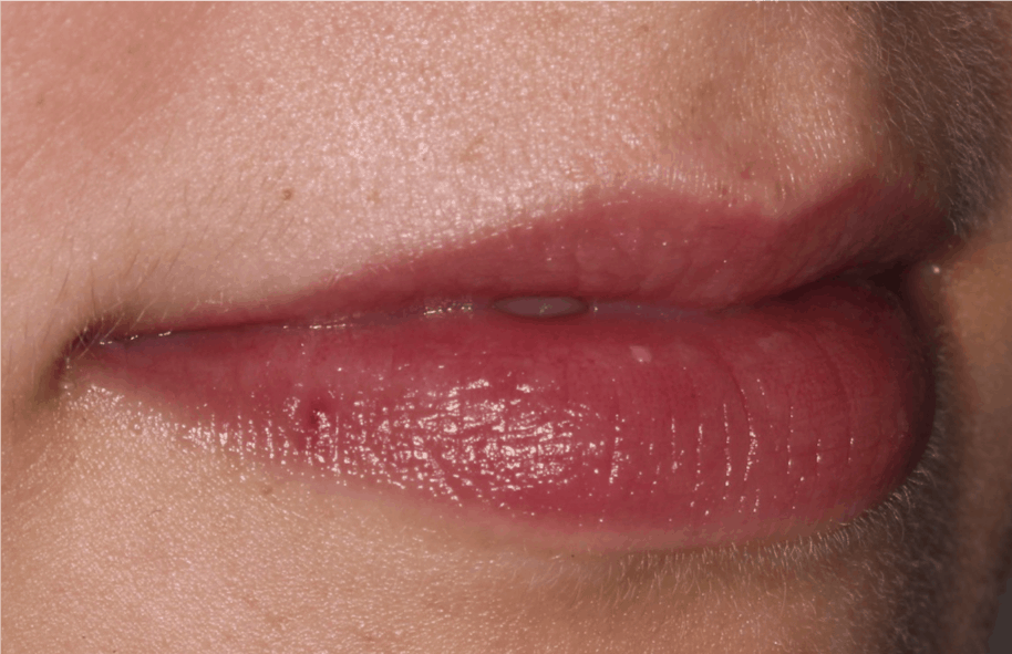 Lip Fillers Liverpool   Full, Plump and Natural Lips from just £185