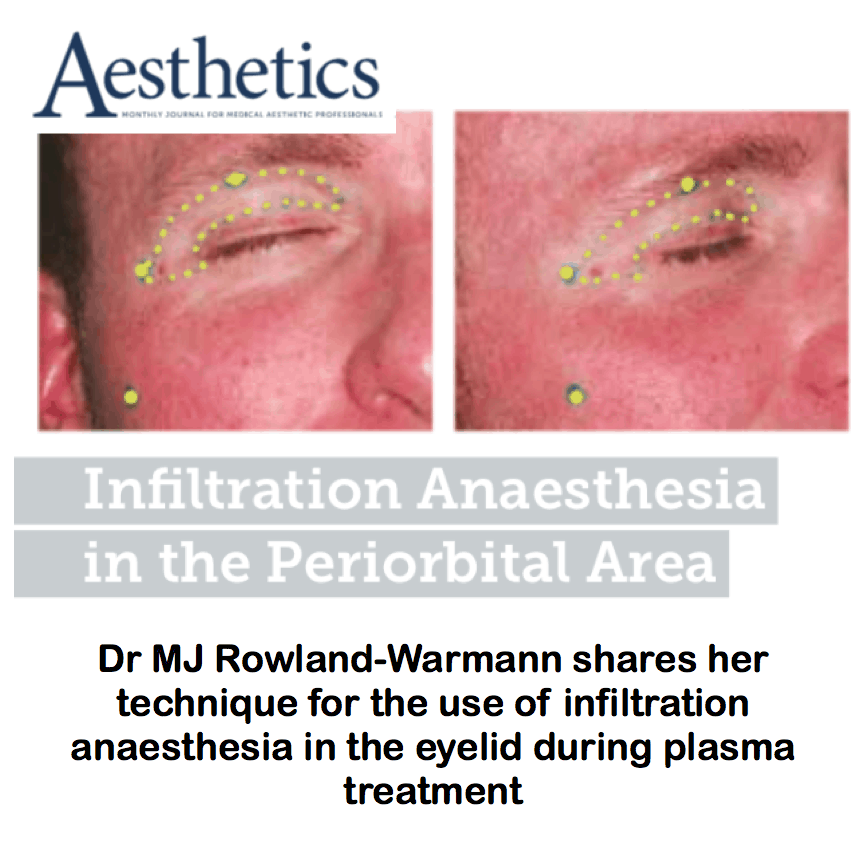 Aesthetics Journal <br/> <br/> Infiltration anaesthesia in the periorbital area
