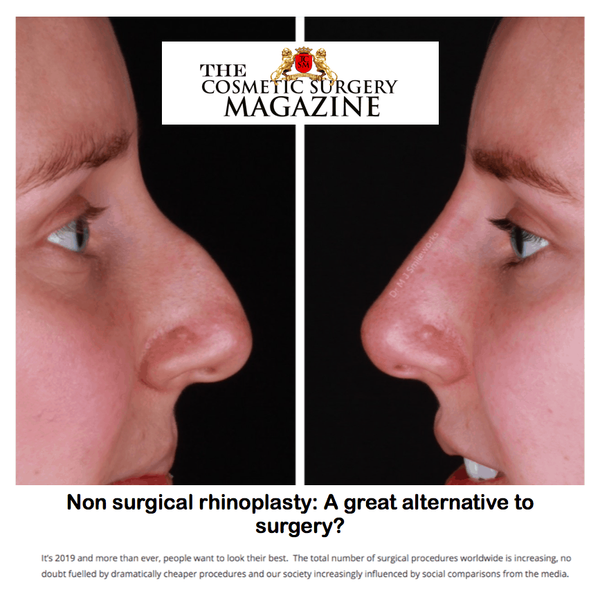 The Cosmetic Surgery Magazine <br/> <br/> Non Surgical Rhinoplasty: A great alternative to surgery?