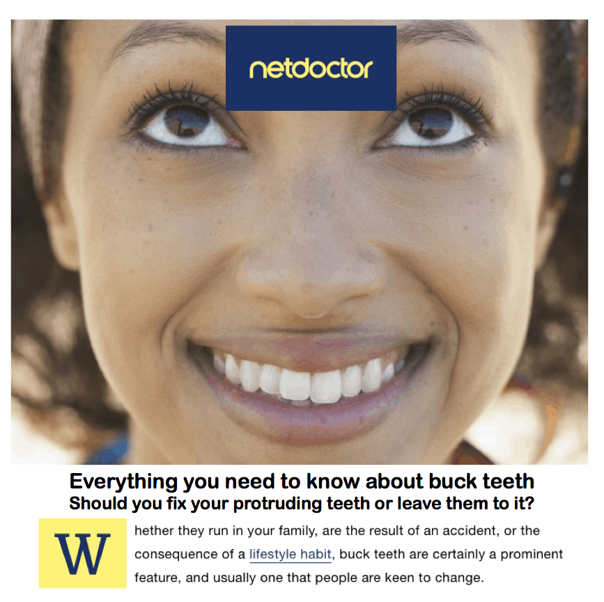 Net doctor <br/> <br/> Everything you need to know about buck teeth