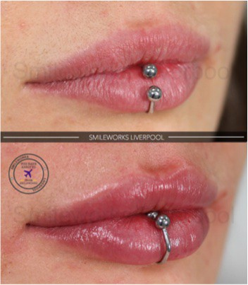 lip filler with piercing